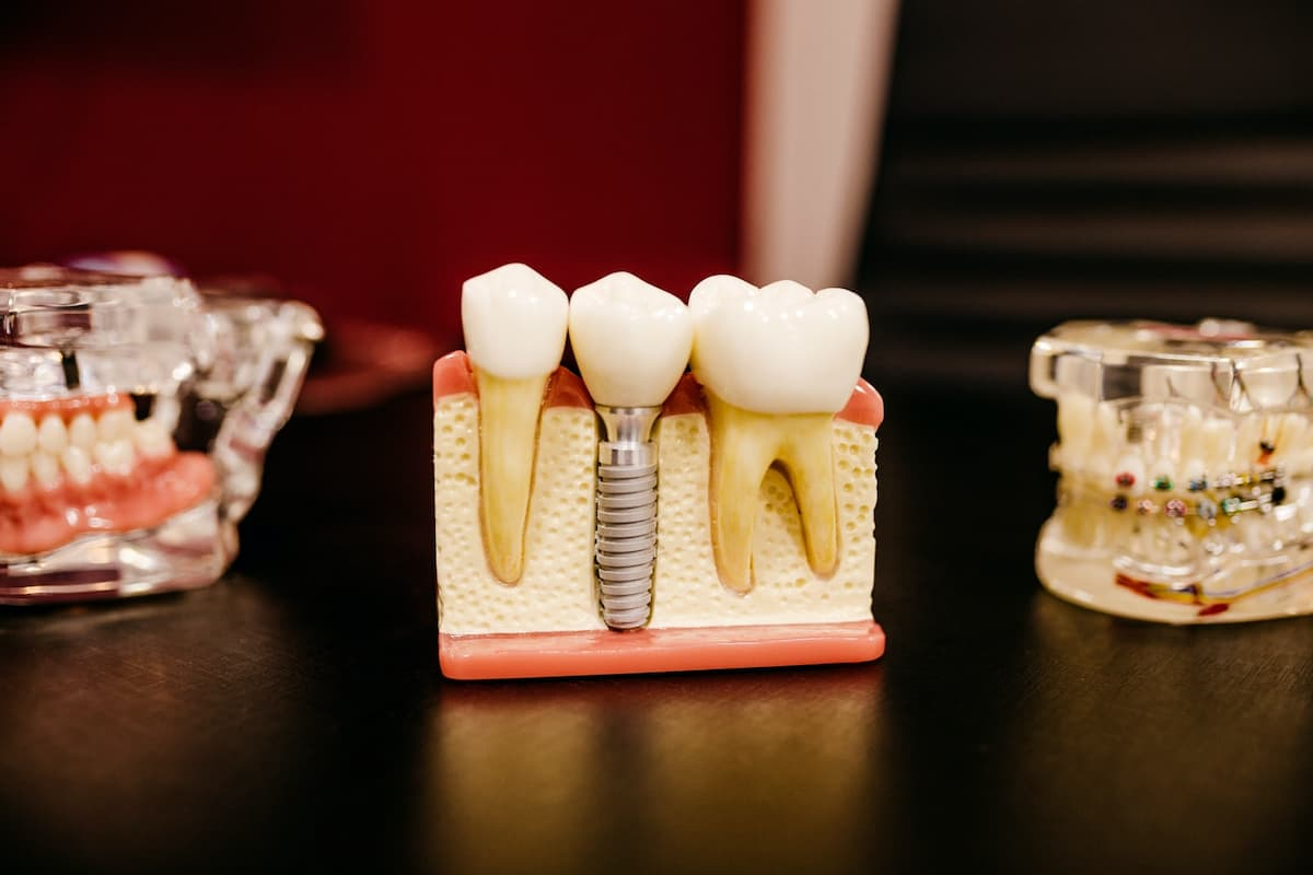 Everything you need to know before going for a Dental Implant